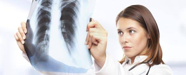 female doctor looking at lung x-ray