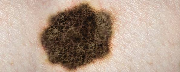 Looking For Skin Cancer Identifying Suspicious Moles Information Myvmc
